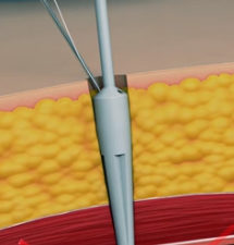 Laparoscopic & Robotic Port Closure System